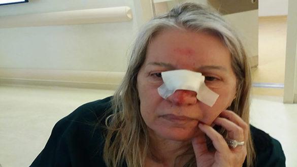 """La testimonianza choc: """"Io, picchiata da un tassista per la fattura"""""""