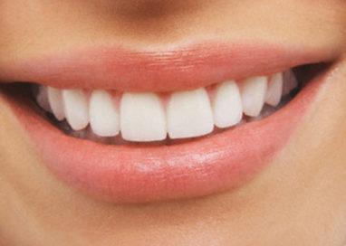 Faccette, come avere un bel sorriso in due mosse. I consigli dell'esperto