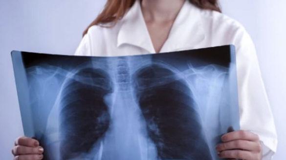 Tumore al polmone, sopravvivenza in aumento grazie alle nuove terapie