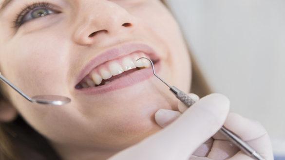 Sbiancamento dentale: migliorare il colore dei denti. I consigli dell'esperto
