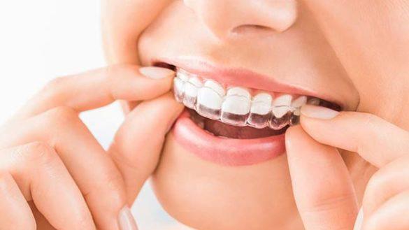 I vantaggi delle mascherine invisibili per allineare i denti