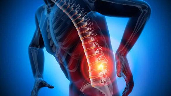 Tecniche infiltrative di Ozonoterapia per curare il mal di schiena