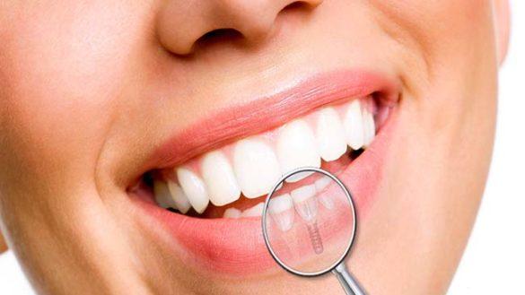 Donare il sorriso al paziente subito e con ottimi risultati