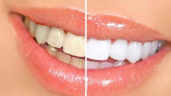 Migliorare il colore dei denti con lo sbiancamento dentale, no al fai da te.