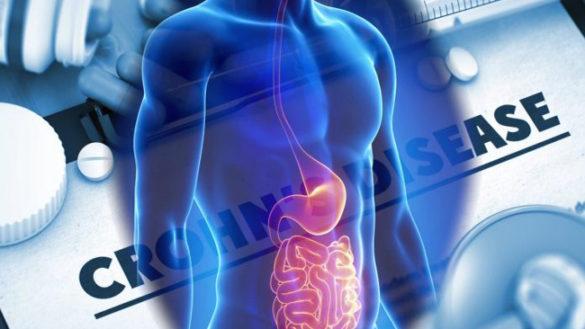 Morbo di Crohn, finanziata una ricerca dell'Università di Parma